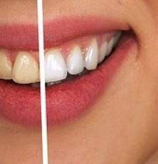 Blancorexia, obsesión por dientes extra blancos